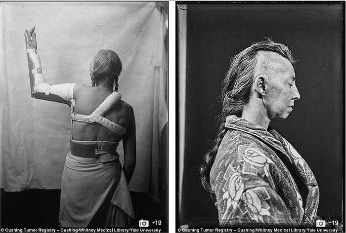 Những bức ảnh của chụp các bệnh nhân với mục đích phục vụ cho sự nghiệp nghiên cứu của bác sỹ Harvey, người khai sinh cho ngành phẫu thuật thần kinh hiện đại, đồng thời là cha đẻ ngành nội tiết học tuyến yên.