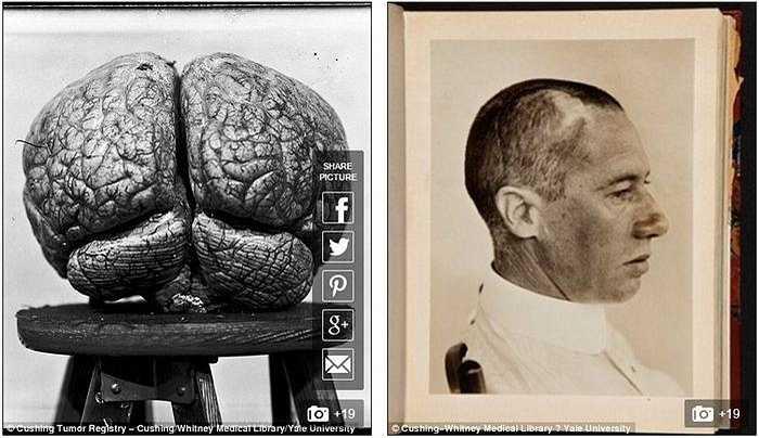 Một bộ não đặc biệt trong bộ sưu tập là của một nhân vật nổi tiếng những năm 1900 - Thiếu tướng Leonard Wood (bên phải), một bác sỹ và là bạn của tổng thống Theodore Roosevelt.