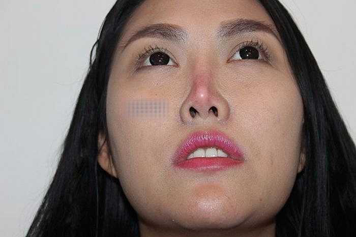Chiếc mũi sưng tấy có nguy cơ hoại tử là một trong những hậu quả đáng sợ của việc làm đẹp.
