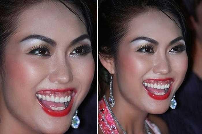 Nửa năm sau khi đặt túi ngực, Phi Thanh Vân đi sửa răng để khắc phục nụ cười kém duyên. 'Nữ hoàng dao kéo' còn chi thêm 29 triệu đồng để thực hiện nâng hàm, chỉnh hình lại răng lần cuối.