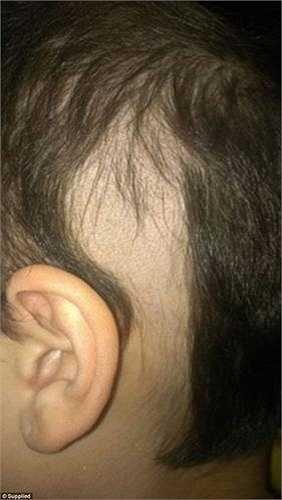Đây là biểu hiện của chứng hiếm gặp rối loạn lo âu Trichotillomania, khiến cô không kiểm soát được việc tự nhổ tóc khỏi đầu mình cho dù da đầu sưng tấy và móng tay đau rát nhưng cô không thể dừng lại.