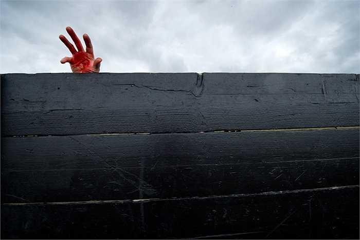 Một bàn tay hóa trang đầy máu ở Saffron Walden, Anh