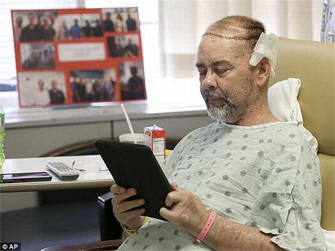 James Boysen là kỹ sư phần mềm được cấy ghép mô sọ cùng lúc với thận và tụy tại Bệnh viện Houston Methodist, Mỹ. Ca đại phẫu diễn ra suốt 24 tiếng đồng hồ, trong đó ca cấy ghép hộp sọ mất 15 giờ.