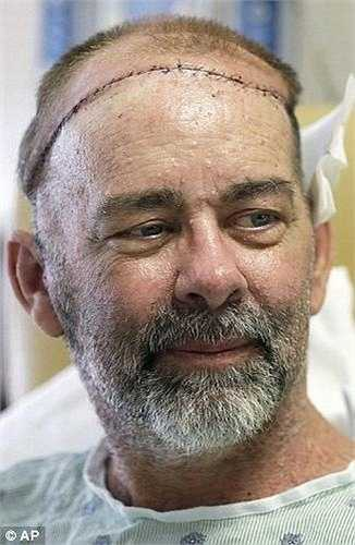 Ông Boysen mắc nhiều bệnh ung thư cùng lúc. Các ca mổ và xạ trị đã khiến hộp sọ và da đầu bị tổn thương.