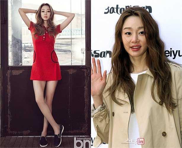 Mỹ nhân phim Xin lỗi, anh yêu em Choi Yeo Jin bị ê-kíp tạp chí 'mài' nhẵn đầu gối, đôi chân mất cân bằng với tỷ lệ cơ thể. Ngoài ra gương mặt đậm chất Hàn của Choi Yeo Jin cũng được chỉnh sửa làm mất đi vẻ sống động.