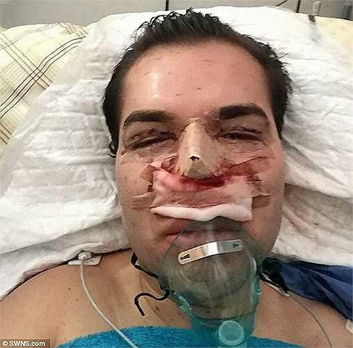 Alves đã chi 4.000 bảng cho thủ thuật ghê rợn cắt da xung quanh miệng và nướu răng để tạo hình đôi môi có nụ cười tự nhiên hơn.