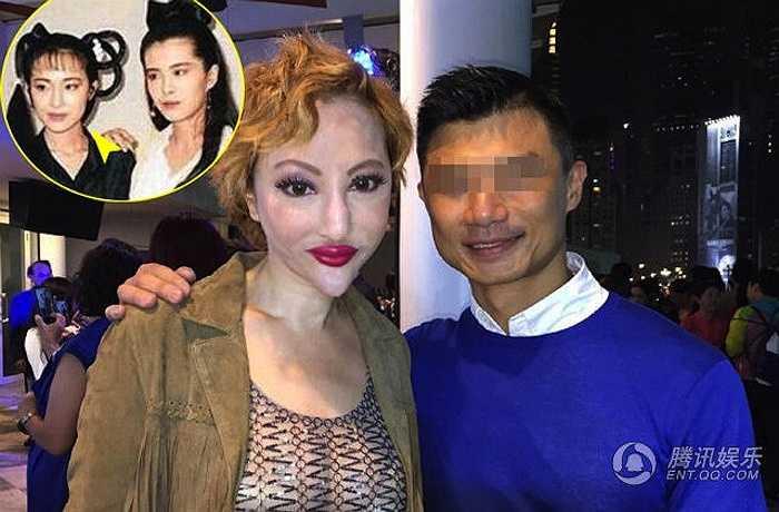 Nữ diễn viên Hồng Kông Tiết Chỉ Luân từng nổi tiếng với nhân vật Nhiếp Tiểu Thiến trong Thiến nữ u hồn. Giờ đây cô trở thành 'nữ hoàng dao kéo' cùng khuôn mặt biến dạng và chiếc cằm 'Bạch Xà' hết sức đáng sợ.