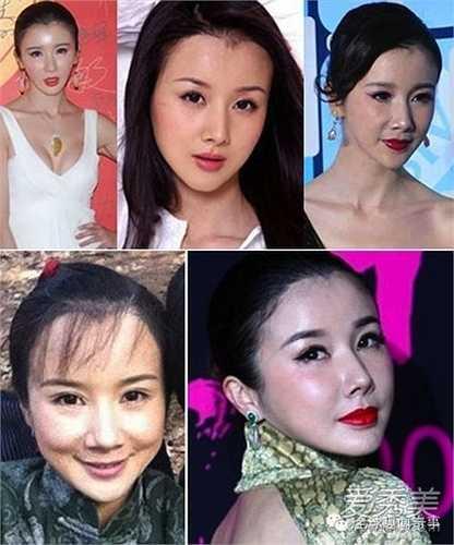 Tôn Phi Phi dính nghi án phẫu thuật thẩm mỹ nhiều nhất, đặc biệt chiếc cằm nhọn tố cáo nữ diễn viên này đã lạm dụng công nghệ dao kéo.