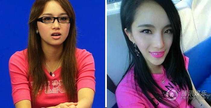 Top 10 giọng hát Happy Girls 2009 Lý Viên Hy hiện tại khiến nhiều người hâm mộ không khỏi thất vọng với chiếc cằm và gương mặt biến dạng của cô nàng sau phẫu thuật thẩm mỹ.