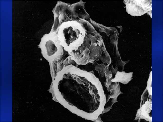 Ký sinh trùng ăn não người Amip. Loài ký sinh trùng này có thể xâm nhập não người từ dưới nước. Sau đó sinh sống và khiến cho người bệnh bị đau đầu, tổn thương vùng trong đầu trầm trọng. Cuối cùng là một cái chết đau đớn đang chờ đợi