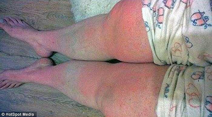 Nếu tiếp xúc với ánh nắng mặt trời, làn da của Laura sẽ đỏ lên và  bắt đầu nứt nẻ rất đau đớn. Thậm chí, Laura còn không dám chải đầu vì sợ phồng rộp da đầu.