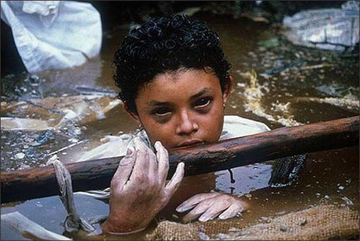 Cô bé Omayra Sánchez sinh năm 1972 là một trong 25.000 nạn nhân trong vụ núi lửa Nevado del Ruiz phun trào tại Colombia  năm 1985 khiến cô bé bị mắc kẹt trong bùn đất suốt 3 ngày. Thứ nước này là nguyên nhân khiến đôi mắt của em trở nên đen sì. Sau 3 ngày vật lộn, Omayra chết do hạ thân nhiệt và hoại tử.
