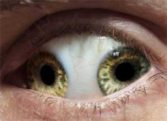 Một người đàn ông ở Trung Quốc có đôi mắt kỳ quái khi sở hữu 2 đồng tử trong một bên mắt. Mặc dù, căn bệnh này không được tìm thấy trong các tài liệu y học, nhưng theo truyền miệng, người đàn ông này là một vị quan lớn trong triều đại Trung Quốc phong kiến năm 995 sau Công nguyên.