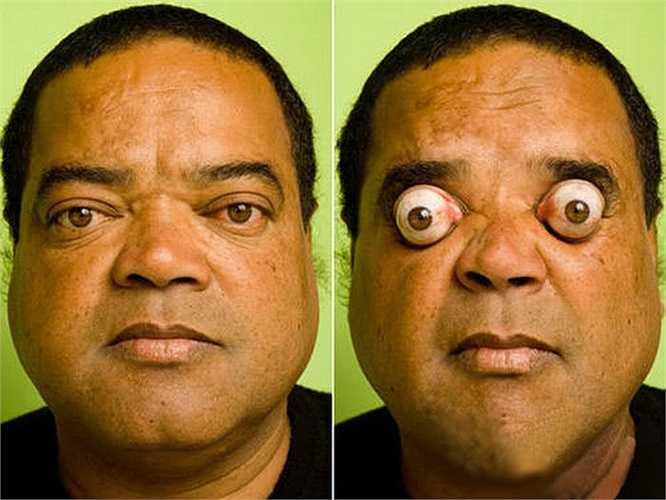 Claudio Pinto sống tại Brazil được phát hiện như người đặc biệt đầu tiên trên thế giới có khả năng điều khiển đôi mắt lồi ra bên ngoài tới hơn 4cm.