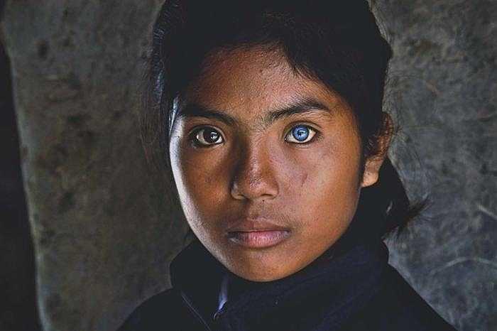 Tại Việt Nam, cô bé Thạch Sa Pa (14 tuổi), người dân tộc Chăm ở xã Phú Quý, Ninh Phước, Ninh Thuận sở hữu đôi mắt kỳ lạ với hai màu đen và xanh.
