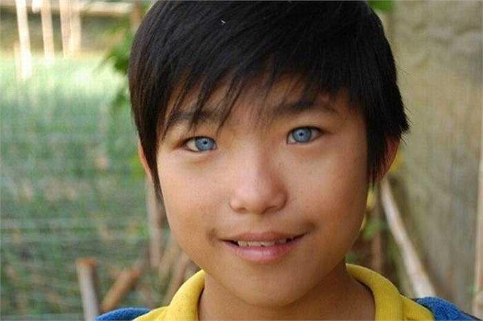 Cậu bé Nguyễn Văn Hào ở Đà Lạt sinh năm 1999 cũng sở hữu đôi mắt màu xanh nước biển khiến nhiều người ngỡ ngàng. Đôi mắt lạ khiến bé Hào gặp không ít phiền toái.