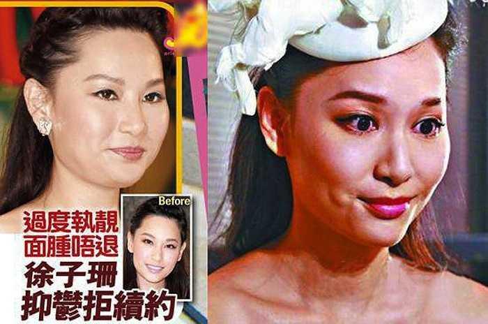Người đẹp TVB Từ Tử San gây sốc với gương mặt sưng phồng.