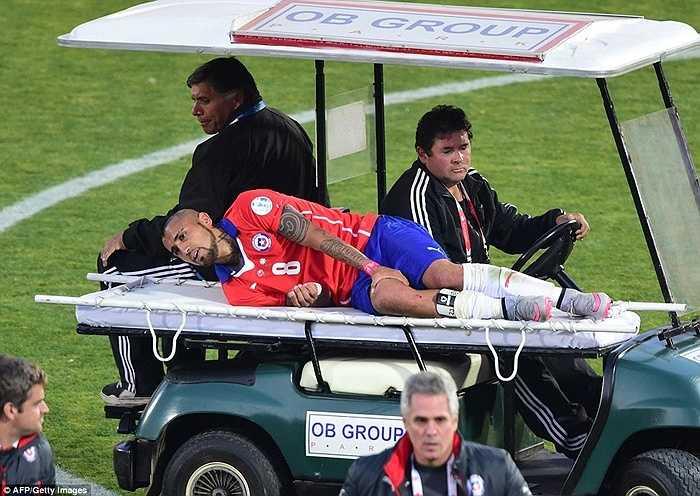 Tiền vệ Vidal phải rời sân cho bác sĩ chăm sóc