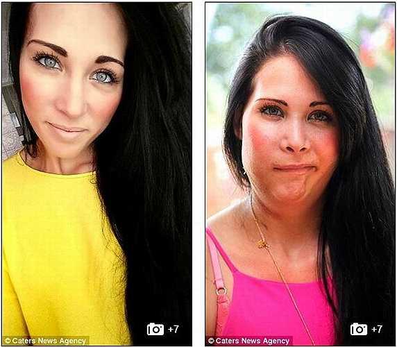 Jannie McHaffie, 25 tuổi sống tại Chelmsford, Essex (Anh) được chẩn đoán ung thư biểu mô hiếm gặp. Để điều trị căn bệnh này, các bác sĩ phải gỡ bỏ xương hàm, răng hàm trên, các phần xương má và hàm trên bên phải của Jannie.