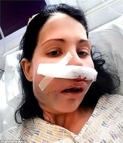 Jannie phải trải qua cuộc phẫu thuật dài 13 giờ đồng hồ và hai cuộc phẫu thuật sau đó để cắt bỏ khối u. Sau 3 tuần nằm viện, bà mẹ trẻ cuối cùng đã được trở về nhà.
