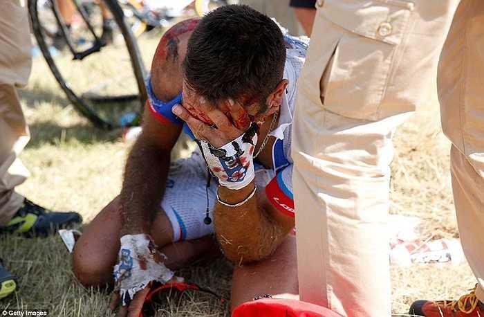 Với chấn thương này gần như cuarơ này phải nói lời tạm biệt với Tour de France 2015
