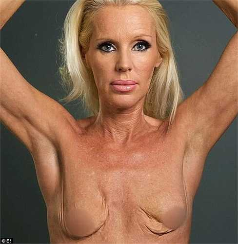 Heather cho biết cô đang nhiễm phải một loại virus khi phẫu thuật ngực, nó làm hỏng bộ ngực của cô. Điều này khiến cho sự nghiệp của cô bị ảnh hưởng nghiêm trọng.