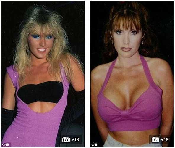 Trước đó, nữ diễn viên này đã nâng ngực để hoàn thiện hơn và gây ấn tượng trong bộ phim mới mà cô tham gia. Thời gian đầu sau khi phẫu thuật, cô rất hài lòng với bộ ngực của mình.