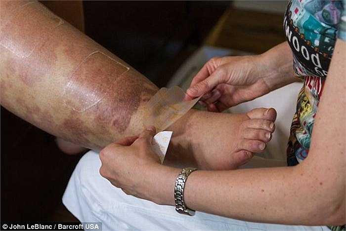 Cô sử dụng một băng nén chân chuyên dụng, giúp cải thiện tình trạng sưng tấy ở chân, cũng như học cách mát xa cho chiếc chân quá khổ của mình.
