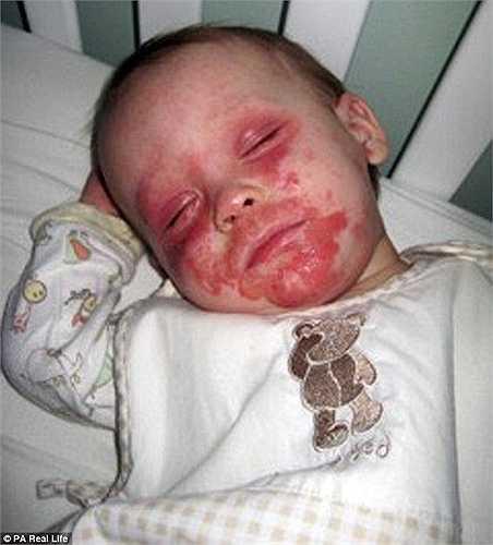 Cậu bé Morgan Bishop mới 5 tuổi nhưng đã phải chiến đấu với căn bệnh eczema từ khi 4 tuổi.