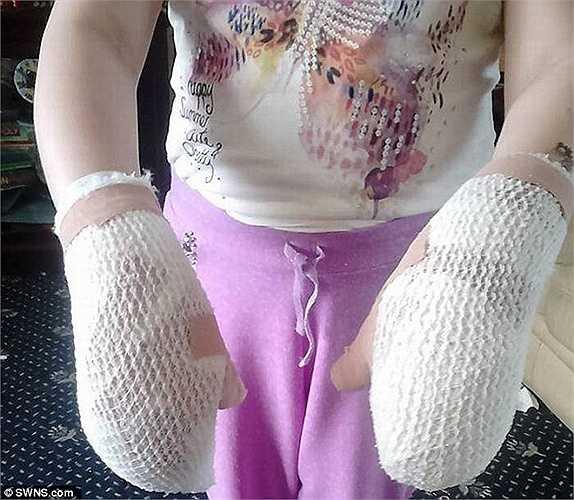 Các bác sỹ đã quấn băng trắng để che đi những vết phồng rộp trên bàn tay đã bị huỷ hoại của bé.
