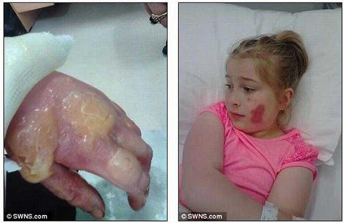 Bé Lauren phải phẫu thuật ghép da để phục hồi bàn tay.