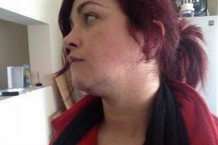 Cheryl Howe (32 tuổi) sống tại Morcecambe (Anh) bị mắc hội chứng đa nang buồng trứng (PCOS) khiến lông ở vùng mặt, ngực, bụng và chân cô phát triển mạnh.
