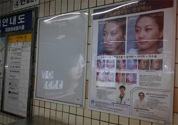 Ở ga điện ngầm Apgujeong, trung tâm quận Gangnam – nơi đóng đô của hàng trăm cơ sở phẫu thuật thẩm mỹ, khoảng ½ số biển quảng cáo có liên quan tới phẫu thuật chỉnh mũi, nâng mặt, bơm ngực.