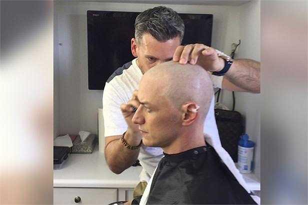 Nam diễn viên James McAvoy phải hy sinh mái tóc của mình cho nhân vật Charlie Xavier trong phần phim lần này.