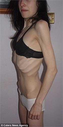 Chứng rối loạn ăn uống khiến Jade chán ăn và sụt cân nghiêm trọng. Jade cao 1m60 nhưng chỉ nặng gần 32kg.