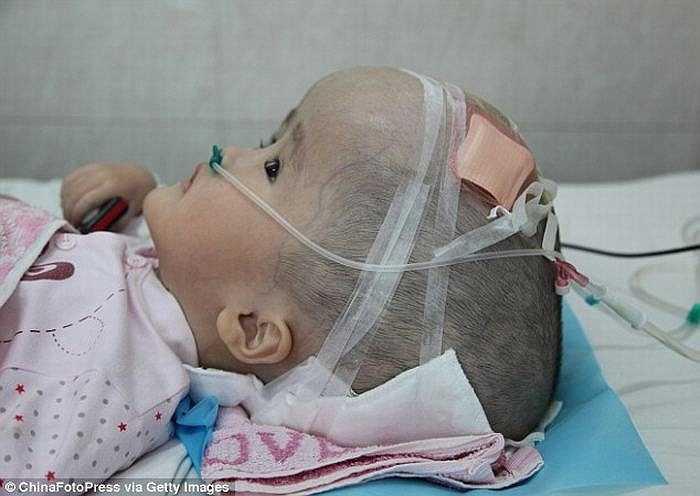Các bác sỹ cho biết, nếu không được chữa trị kịp thời, cô bé có thể bị mù vĩnh viễn, thậm chí đầu có thể nổ bất cứ lúc nào. Vì vậy họ đã nhanh chóng quyết định phẫu thuật tái tạo hộp sọ cho cô bé bằng công nghệ 3D.