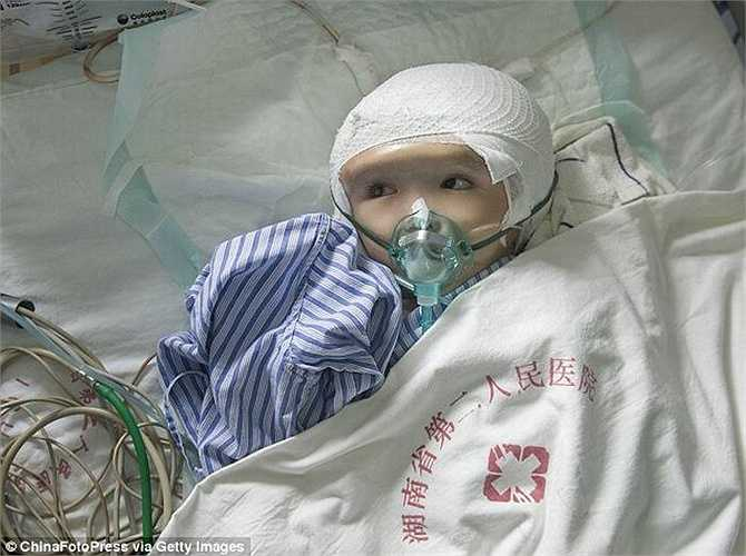 Số tiền để thực hiện ca phẫu thuật lên đến 500.000 NDT (tương đương 80.000 USD). Số tiền quá lớn nên gia đình Hân Hân không có đủ sức để lo liệu, nhưng nhờ sự trợ giúp từ cộng đồng và bệnh viện TW tỉnh Hồ Nam, cô bé sẽ được phẫu thuật miễn phí.