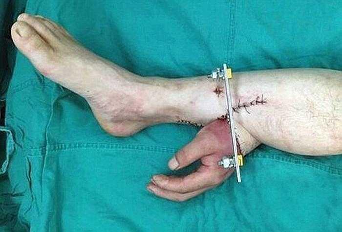 Các bác sỹ Trung Quốc vừa thực hiện một ca phẫu thuật đặc biệt để cứu bàn tay của một bệnh nhân bằng cách gắn nó vào chân của chính bệnh nhân đó trong khi chờ phẫu thuật.