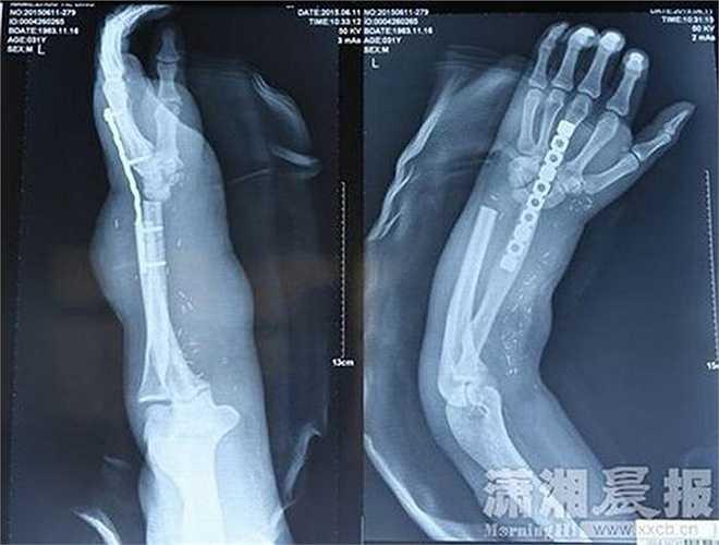 Zhou đã được đưa tới bệnh viện Xiangya để chữa trị. Tuy nhiên do bàn tay và cả cánh tay của anh đã bị thương nặng, các bác sỹ không thể nối ghép tay lại cho anh ngay nên phải nối bàn tay bị cắt rời vào chân bên phải của anh để các dây thần kinh và gân có thời gian hồi phục.