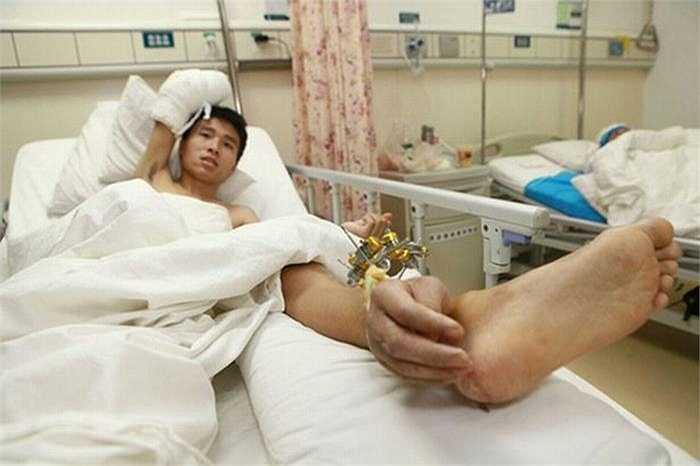 Trước đó vào năm 2013, một vụ tai nạn tương tự cũng xảy ra với Xiao Wei khiến anh bị đứt lìa một bàn tay. Và sau 1 tháng nối bàn tay vào đầu gối, các bác sỹ tại bệnh viện Thường Đức, tỉnh Hồ Nam mới có thể phẫu thuật nối lại bàn tay.