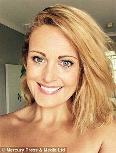 Alys Mann, 34 tuổi, sống tại Felinheli, phía Bắc xứ Wales mắc chứng bệnh có tên dermatillomania khiến cô bị ám ảnh và tự cào cấu mình đến mức không thể ngừng lại đến khi tự gây tổn thương cho mình.