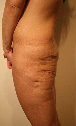 Nhìn nghiêng, vòng 3 của Heidi gần như biến mất hoàn toàn. Nguyên nhân do bác sỹ phẫu thuật đã hút mỡ quá đà.