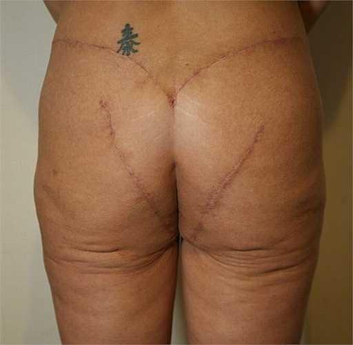 Heidi được các bác sỹ của chương trình rút mỡ ở đùi và đầu gối rồi tiêm lại vào phần mông. Ca phẫu thuật kéo dài 3 giờ đã thành công.