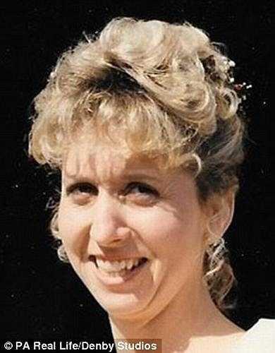 Charlotte Bateman (49 tuổi) sống tại Collington, Herefordshire (Anh) mắc bệnh về nướu răng nhưng nhiều lần đi khám và đã điều trị cả năm nhưng bệnh không hề thuyên giảm thậm chí hàm răng của bà còn biến dạng.