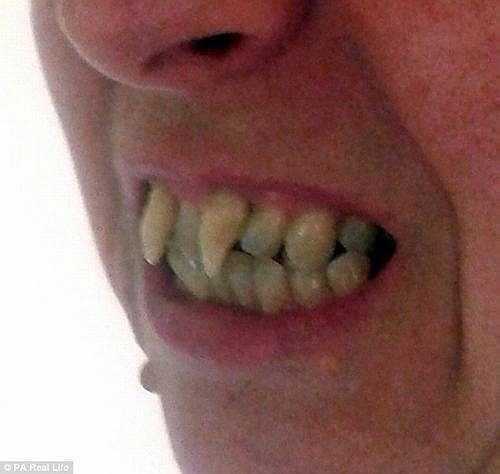 Mãi đến năm 2011, sau khi chụp X-quang, Charlotte mới được chẩn đoán mắc bệnh nha chu nghiêm trọng. Phần nướu quá mềm, không giữ được chân răng khiến chúng mọc lởm chởm.