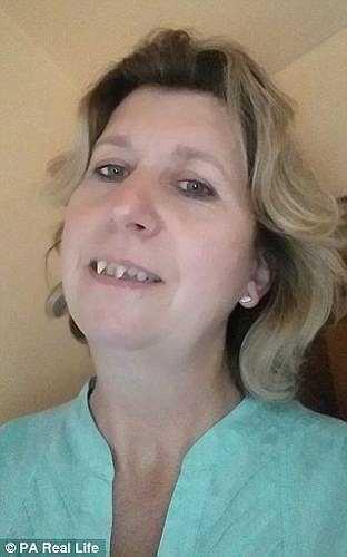 Điều khủng khiếp là những chiếc răng nanh của Charlotte ngày càng dài và sắc nhọn khiến bà có nụ cười không khác gì... ma cà rồng.