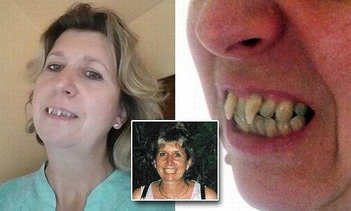 Đến đầu năm 2014, Charlotte đã được bồi thường 25.000 bảng (khoảng 840 triệu đồng) để sửa răng sau khi bà khởi kiện thành công nha sỹ từng khám bệnh cho bà mà không phát hiện ra bệnh.