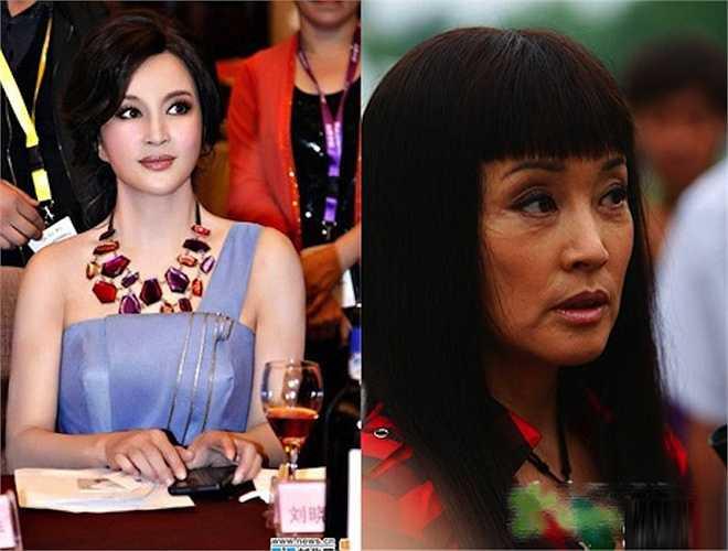 Gương mặt bất thường của Lưu Hiểu Khánh cho thấy dường như cô đã phải trải qua vô số ca phẫu thuật căng da mặt hoặc tiêm botox khiến cử động cơ mặt thiếu tự nhiên