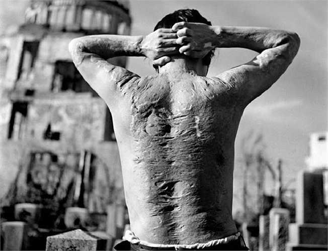 Một nạn nhân bom nguyên tử ở thành phố Hiroshima