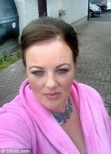 Aideen Hynes (34 tuổi) sống tại hạt Down, Bắc Ireland (Anh) bị một loài nhện độc có tên 'nhện góa phụ' bò lên giường và cắn vào bắp chân.